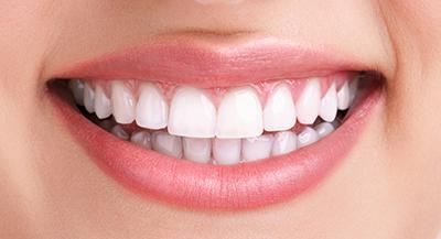 Esthétique dentaire Chambéry