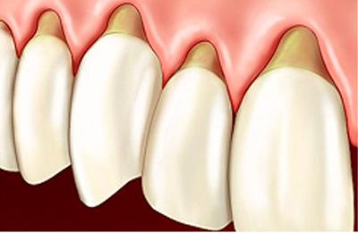 Parodontologie Chambéry